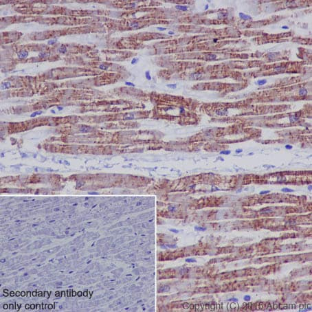 Immunohistochemistry (Formalin/PFA-fixed paraffin-embedded sections) - Anti-Sarcomeric Alpha Actinin antibody [EP2529Y] (ab68167)