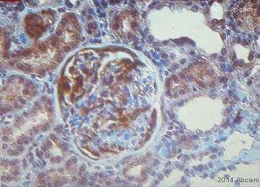 Immunohistochemistry (Formalin/PFA-fixed paraffin-embedded sections) - Anti-alpha Actinin antibody [EP2527Y] (ab68194)