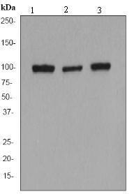 Western blot - Anti-alpha Actinin antibody [EP2527Y] (ab68194)