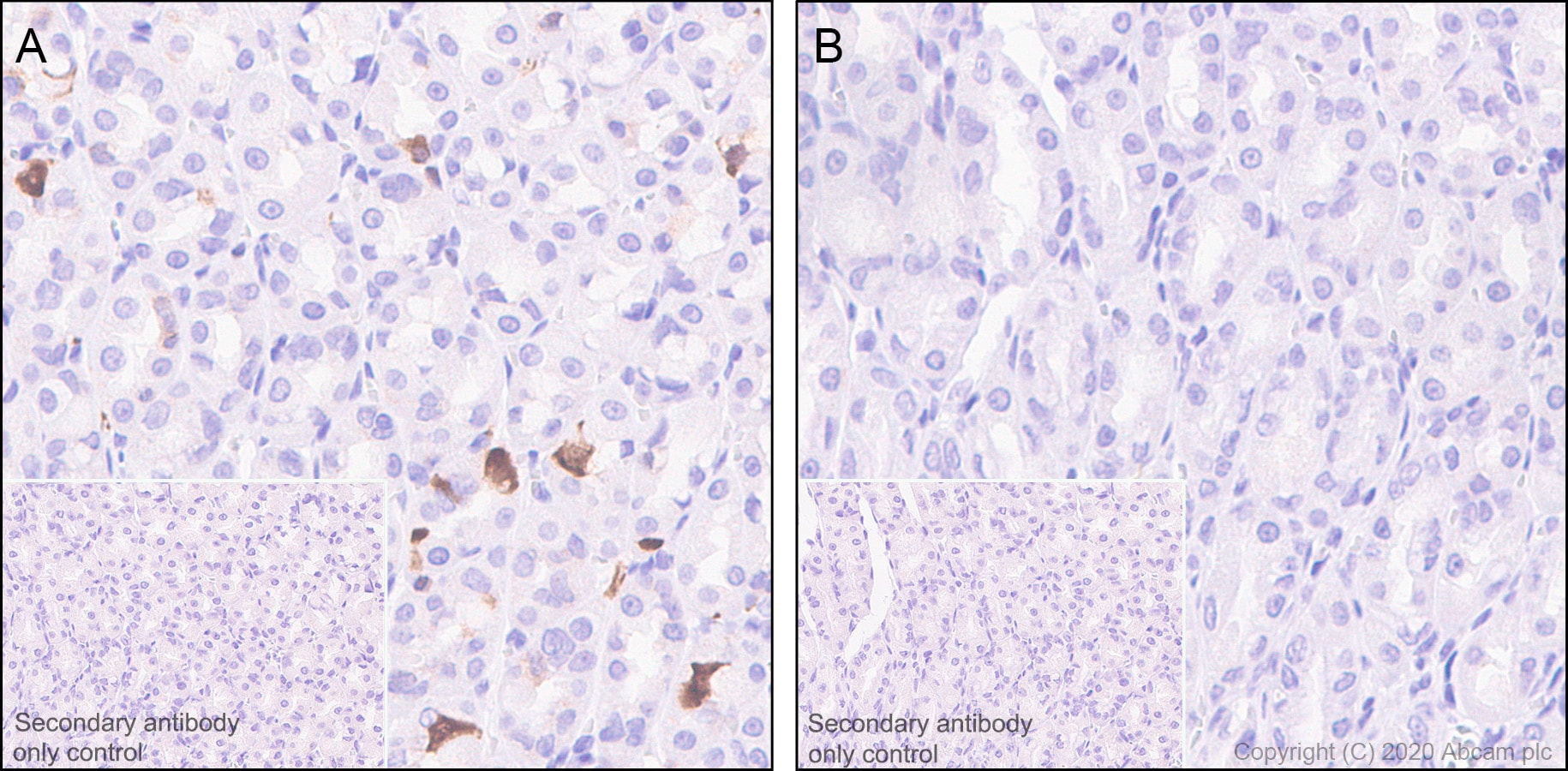 Immunohistochemistry (Formalin/PFA-fixed paraffin-embedded sections) - Anti-CDK2 (phospho T14) antibody [EP2234Y] (ab68265)