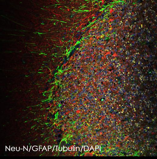 Multiplex immunohistochemistry - Anti-GFAP antibody [EPR1034Y] (ab68428)