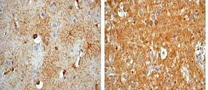 Immunohistochemistry (Formalin/PFA-fixed paraffin-embedded sections) - Anti-GFAP antibody [EPR1034Y] (ab68428)