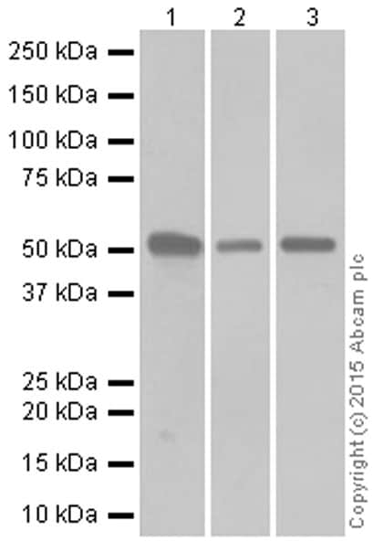 Western blot - Anti-Cytokeratin 7 antibody [EPR1619Y] - Cytoskeleton Marker (ab68459)