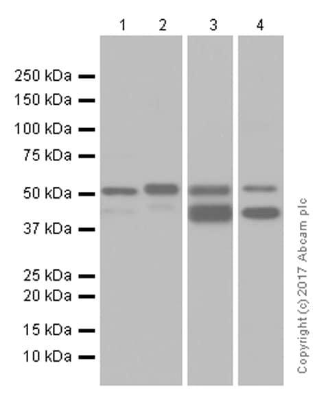 Western blot - Anti-Cytokeratin 7 antibody [EP1620Y] (ab68460)