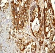 Immunohistochemistry (Formalin/PFA-fixed paraffin-embedded sections) - Anti-eIF4B antibody [EP2299Y] (ab68474)