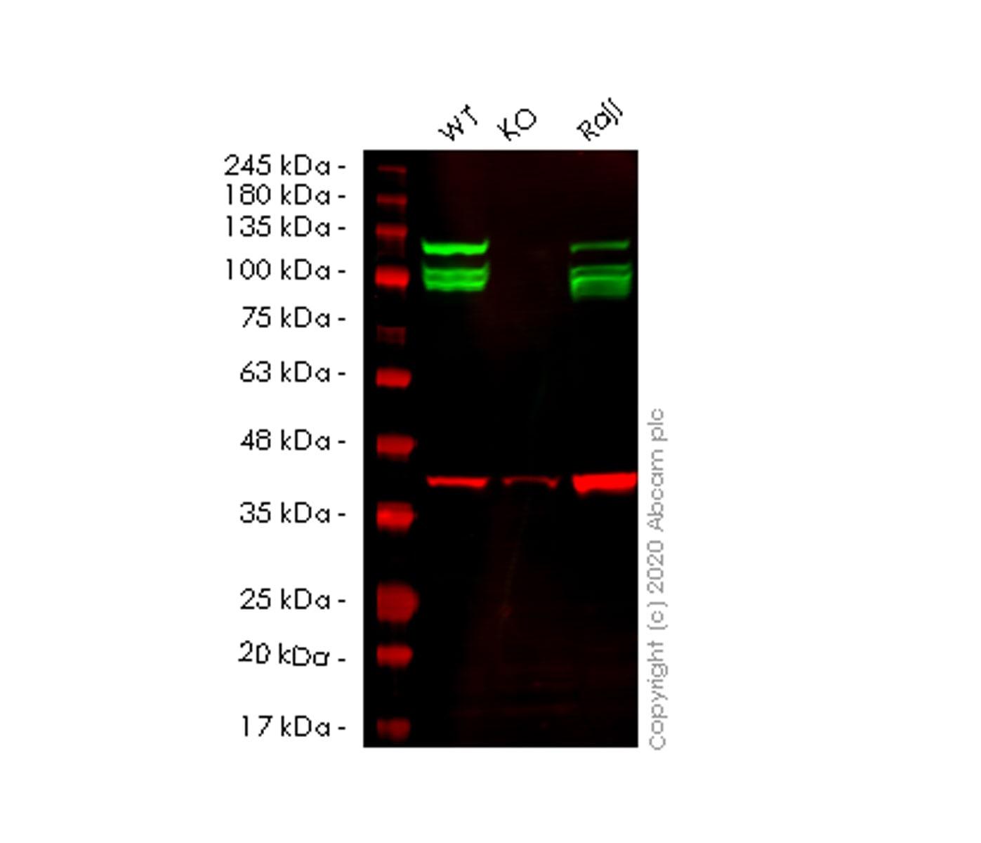 Western blot - Anti-E1B-AP5 antibody [EP2633Y] (ab68480)