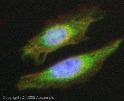 Immunocytochemistry/ Immunofluorescence - Anti-ALK-1 antibody (ab68703)