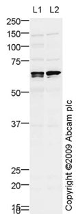Western blot - Anti-ALK-1 antibody (ab68703)