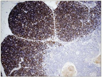 Immunohistochemistry (Formalin/PFA-fixed paraffin-embedded sections) - Anti-TdT antibody [41A] (ab68886)