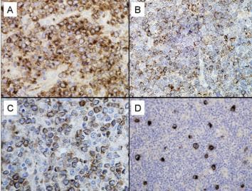 Immunohistochemistry (Formalin/PFA-fixed paraffin-embedded sections) - Anti-GCET1 antibody [RAM341] (ab68889)