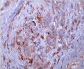 Immunohistochemistry (Formalin/PFA-fixed paraffin-embedded sections) - Anti-Osteopontin antibody [53] (ab69498)
