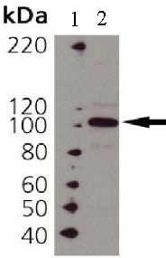 Western blot - Anti-Hsp104 antibody (ab69549)