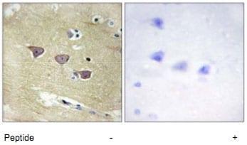 Immunohistochemistry (Formalin/PFA-fixed paraffin-embedded sections) - Anti-CAMKV antibody (ab69564)
