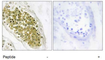 Immunohistochemistry (Formalin/PFA-fixed paraffin-embedded sections) - Anti-HIPK4 antibody (ab69565)