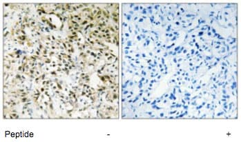 Immunohistochemistry (Formalin/PFA-fixed paraffin-embedded sections) - Anti-PPHLN1/Periphilin-1 antibody (ab69569)