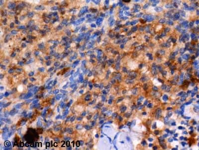 Immunohistochemistry (Formalin/PFA-fixed paraffin-embedded sections) - Anti-galectin 9/Gal-9 antibody (ab69630)