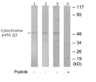 Western blot - Anti-Cytochrome p450 2J2 antibody (ab69651)