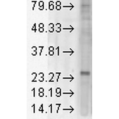 Western blot - Anti-KDEL Receptor antibody [KR-10] (ab69659)