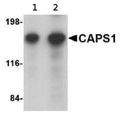 Western blot - Anti-CAPS1 antibody (ab69797)