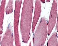 Immunohistochemistry (Formalin/PFA-fixed paraffin-embedded sections) - Anti-PAX3 antibody [C2] (ab69856)