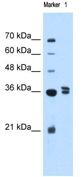 Western blot - Anti-TFB1M antibody (ab69871)