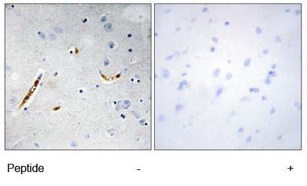 Immunohistochemistry (Formalin/PFA-fixed paraffin-embedded sections) - Anti-TCF3 / E2A antibody (ab69999)