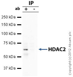 Immunoprecipitation - Anti-HDAC2 antibody - ChIP Grade (ab7029)