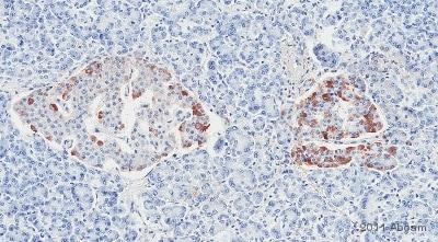 Immunohistochemistry (Formalin/PFA-fixed paraffin-embedded sections) - Anti-Collagen V antibody (ab7046)