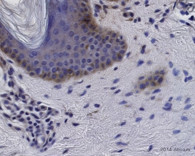 Immunohistochemistry (Formalin/PFA-fixed paraffin-embedded sections) - Goat Anti-Rabbit IgG H&L (HRP) preadsorbed (ab7090)