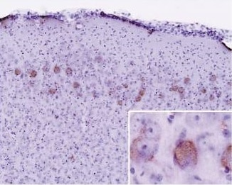 Immunohistochemistry (Formalin/PFA-fixed paraffin-embedded sections) - Anti-Ubiquitin antibody [Ubi-1] (ab7254)