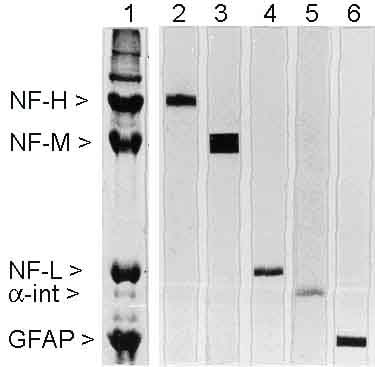 Western blot - Anti-68kDa Neurofilament/NF-L antibody [DA2] (ab7255)