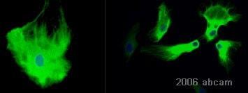 免疫细胞化学/免疫荧光抗GFAP抗体(AB7260)