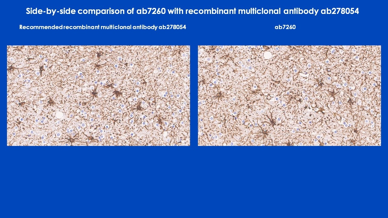 Immunohistochemistry - Anti-GFAP antibody (ab7260)