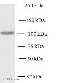 Western blot - Anti-PKD2 antibody (ab7281)