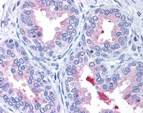 Immunohistochemistry (Formalin/PFA-fixed paraffin-embedded sections) - Anti-ABCA1 antibody (ab7360)