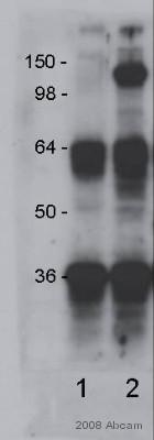 Immunoprecipitation - Anti-CD13 antibody [WM15] (ab7417)