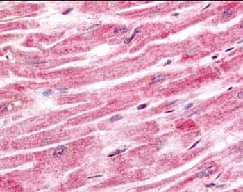Immunohistochemistry (Formalin/PFA-fixed paraffin-embedded sections) - Anti-Sprouty 4 antibody (ab7513)