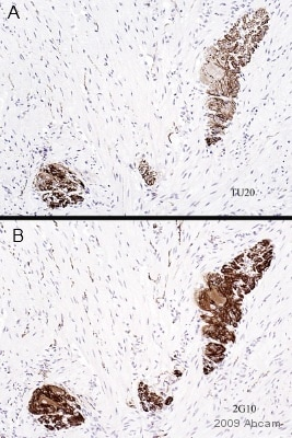 Immunohistochemistry (Formalin/PFA-fixed paraffin-embedded sections) - Anti-beta III Tubulin antibody [TU-20] - Neuronal Marker (ab7751)