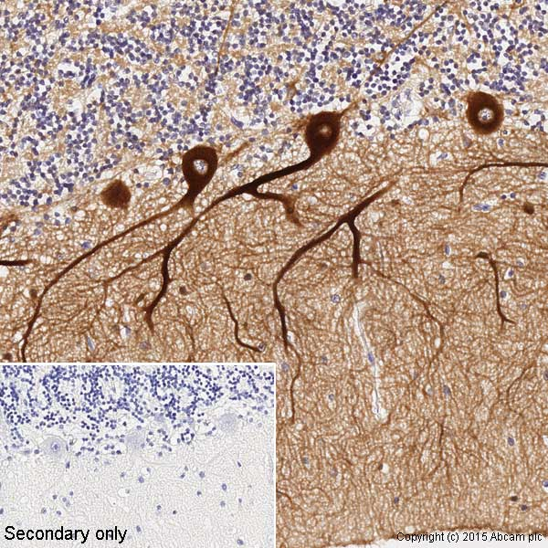Immunohistochemistry paraffin embedded sections - Anti-beta III Tubulin antibody [TU-20] (ab7751)