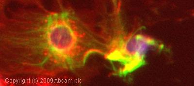 Immunocytochemistry/ Immunofluorescence - Anti-Cytokeratin 19 antibody [BA-17] (ab7755)