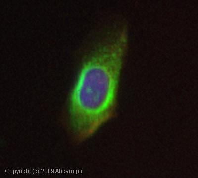 Immunocytochemistry - Anti-Ubiquitin antibody (ab7780)