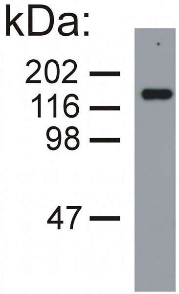 Western blot - Anti-160 kD Neurofilament Medium antibody [NF-09] (ab7794)