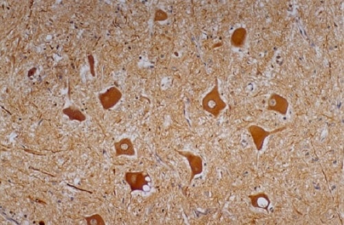 Immunohistochemistry (Formalin/PFA-fixed paraffin-embedded sections) - Anti-Neurofilament heavy polypeptide antibody [NF-01] (ab7795)