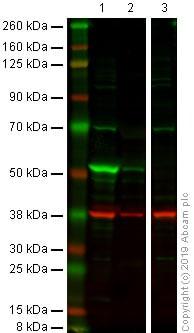 Western blot - Anti-Cytokeratin 14 antibody [LL002] (ab7800)