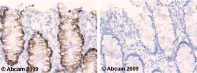Immunohistochemistry (Formalin/PFA-fixed paraffin-embedded sections) - Anti-MUC2 antibody [B306.1] (ab7848)