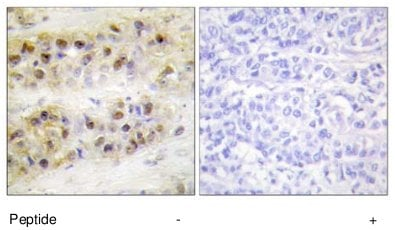 Immunohistochemistry (Formalin/PFA-fixed paraffin-embedded sections) - Anti-ROR alpha antibody (ab70061)