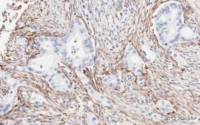 Immunohistochemistry (Formalin/PFA-fixed paraffin-embedded sections) - Anti-MRC2/ENDO180 antibody (ab70132)
