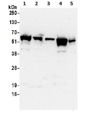 Western blot - Anti-KPNA2 antibody (ab70160)