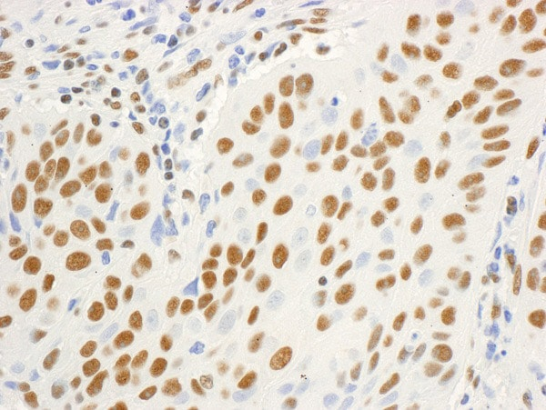 Immunohistochemistry (Formalin/PFA-fixed paraffin-embedded sections) - Anti-DBC-1 antibody (ab70242)