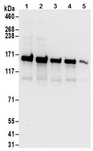 Western blot - Anti-DIS antibody (ab70243)